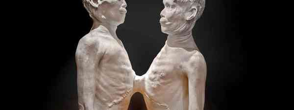 Death Cast of 'Siamese Twins' Chang and Eng Bunker (The Mütter Museum of The College of Physicians of Philadelphia)